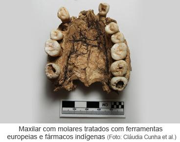 Maxilar com molares tratados com ferramentas europeias e fármacos indígenas